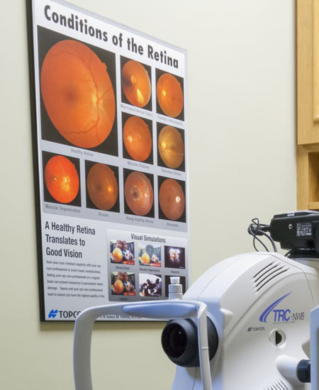 Retinal Scan, Sharpe Optometrist, London, Ontario